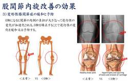 股関節内旋改善の効果2