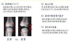股関節内旋改善の効果 成長板について